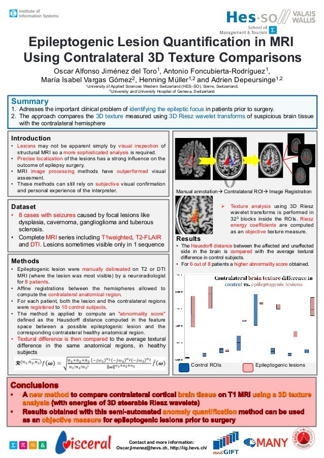 Epileptogenic Lesion Quantification in MRI Using Contralateral 3D Texture Comparisons 1, Toro  Oscar Alfonso Jiménez del A...