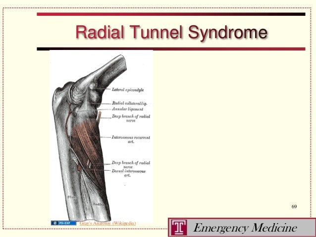 Similiar Radial Nerve Tunnel Syndrome Keywords