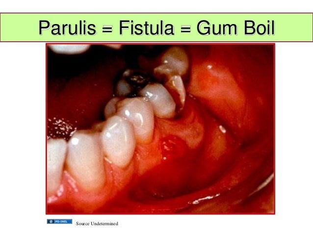 Gum Fistula Parulis Fistula Gum Boil