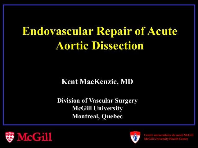 Endovascular Repair of AcuteAortic DissectionKent MacKenzie, MDDivision of Vascular SurgeryMcGill UniversityMontreal, Quebec