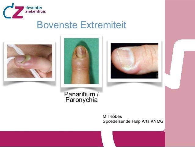Bovenste Extremiteit  Panaritium / Paronychia M.Tebbes Spoedeisende Hulp Arts KNMG