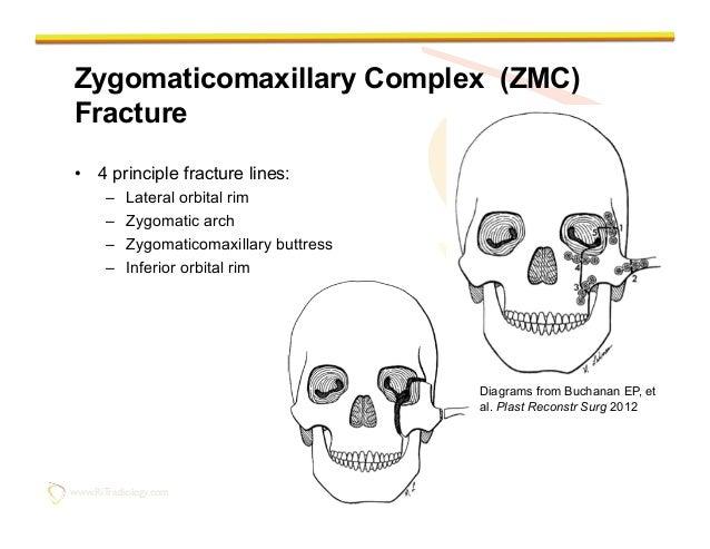 Orbital Rim Fracture Orbital Rim – Zygomatic