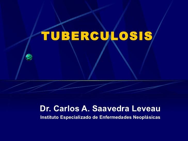 21. tuberculosis