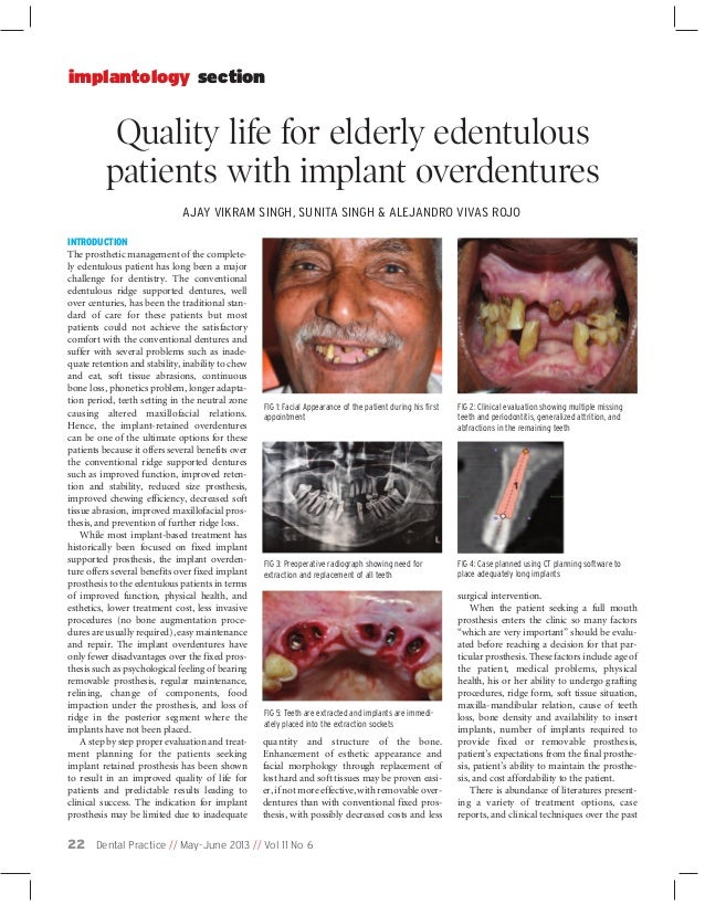 implantology section  Quality life for elderly edentulous patients with implant overdentures AJAY VIKRAM SINGH, SUNITA SIN...