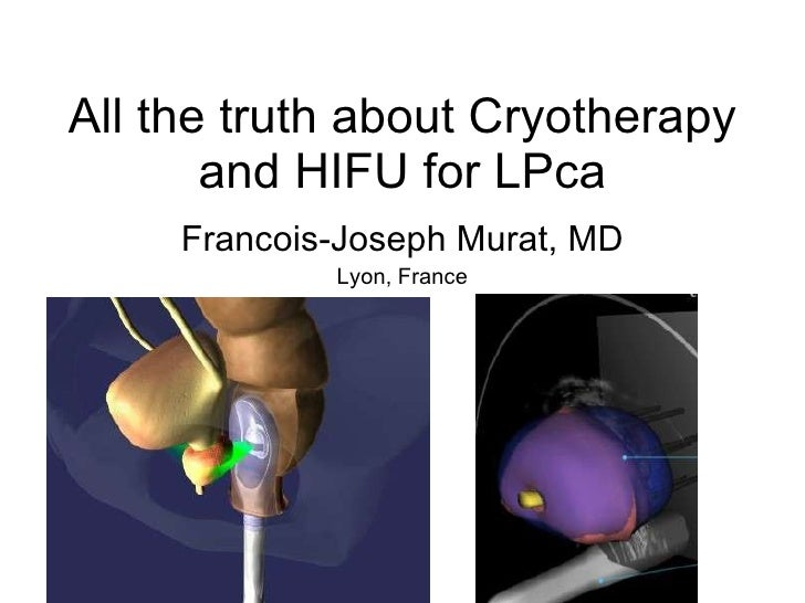 All the truth about Cryotherapy and HIFU for LPca Francois-Joseph Murat, MD Lyon, France