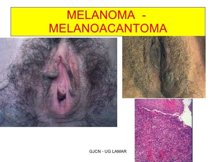Hott Leep of vulva he?