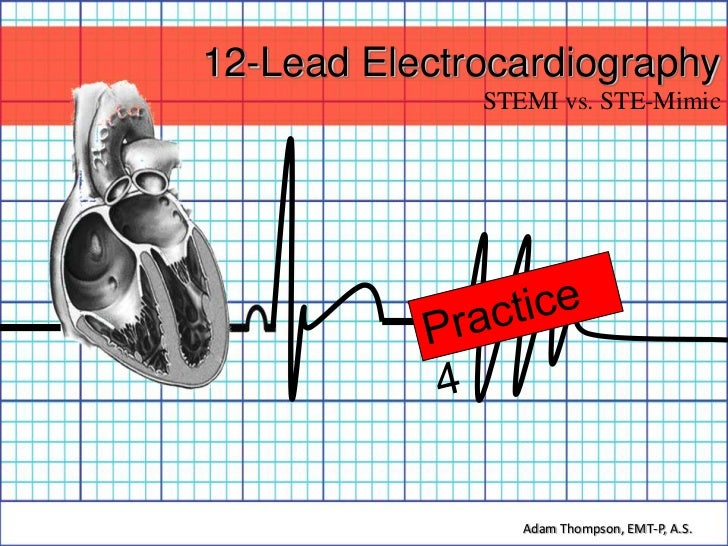 12-Lead Electrocardiography              STEMI vs. STE-Mimic                 Adam Thompson, EMT-P, A.S.