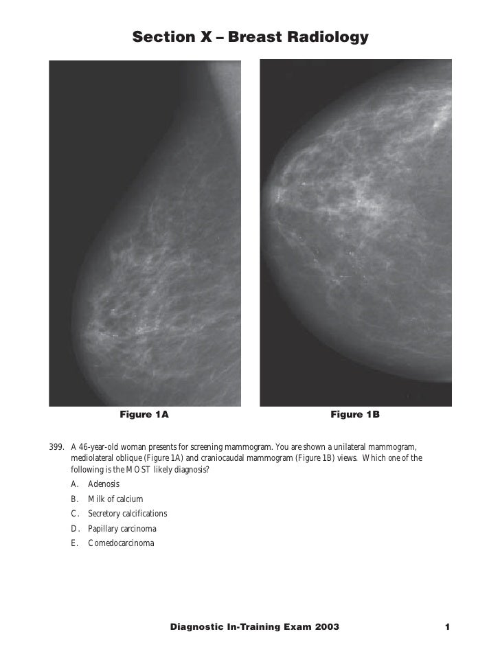 Section X – Breast Radiology                                                                                Figure 1B     ...