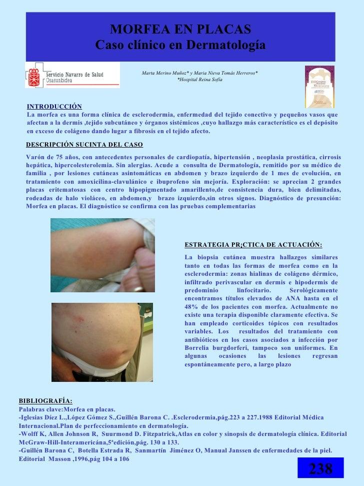 MORFEA EN PLACAS Caso clínico en Dermatología <ul><li>Marta Merino Muñoz* y Maria Nieva Tomás Herreros* </li></ul><ul><li>...