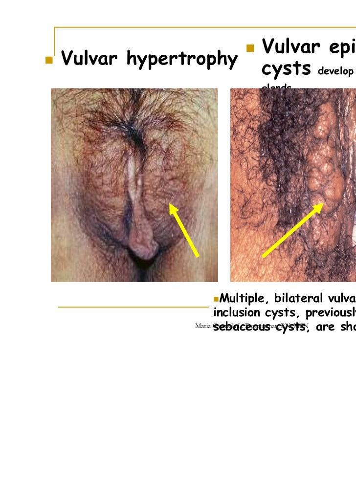 vaginal sebaceous glands
