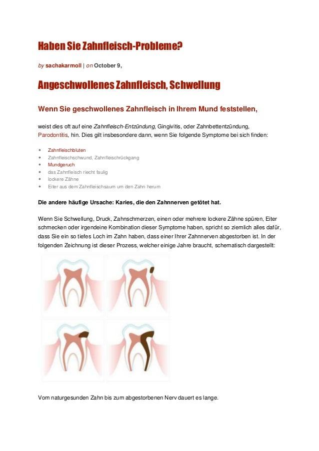 Haben Sie Zahnfleisch-Probleme? Angeschwollenes Zahnfleisch, Schwellung