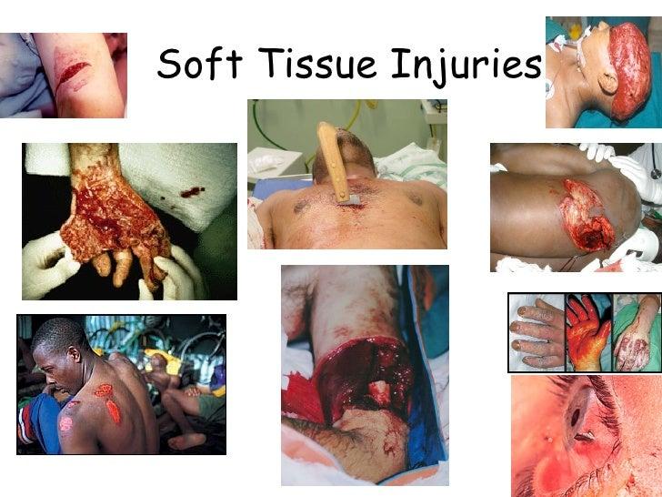 25)Soft Tissue Injuries