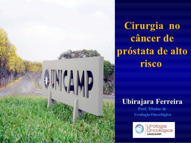 Cirurgia no   câncer depróstata de alto     risco Ubirajara Ferreira     Prof. Titular de    Urologia Oncológica