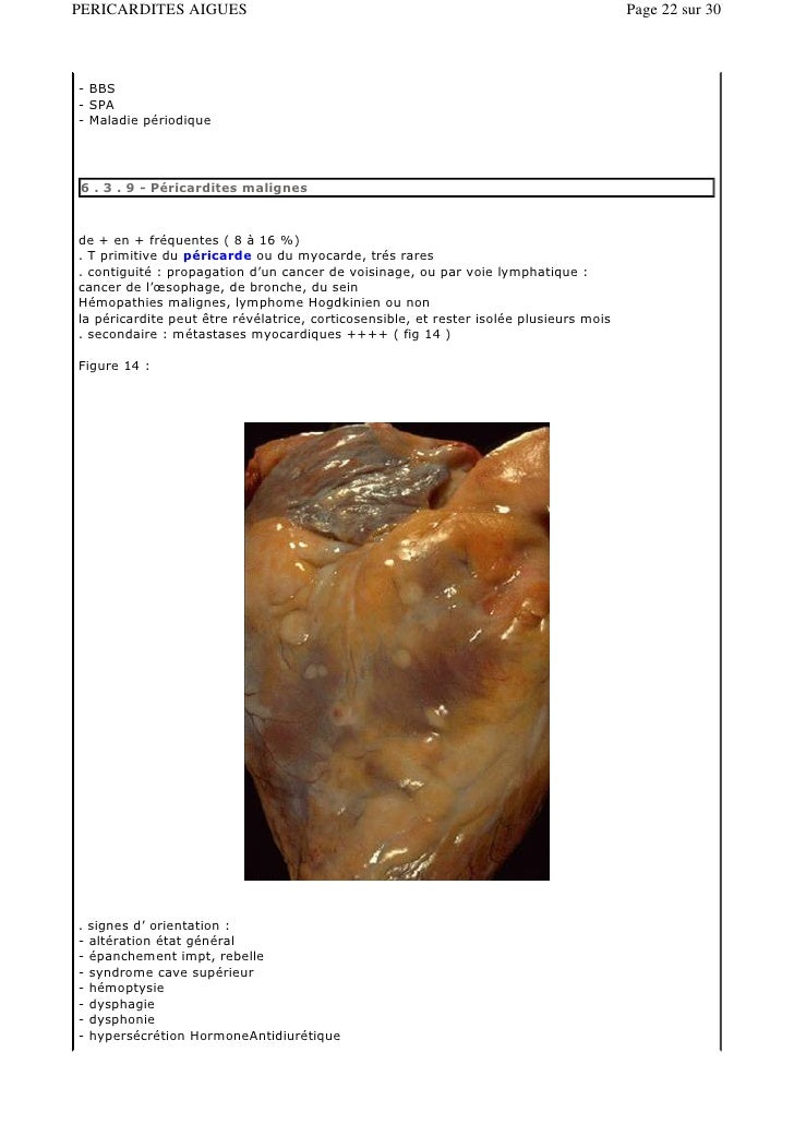 plaquenil kaina