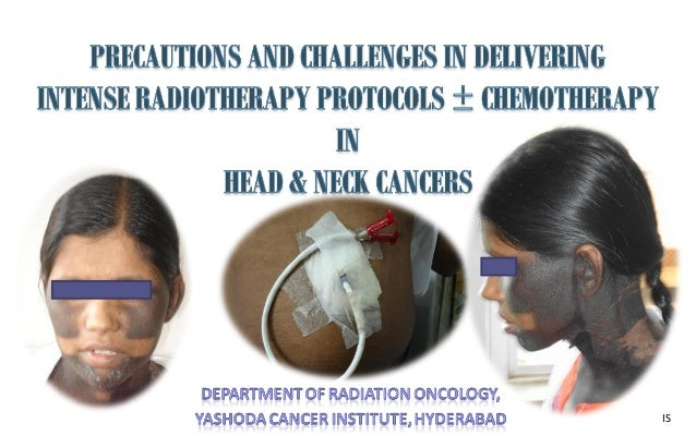 Precautions and challenges in delivering intense radiotherapy protocols with/without chemotherapy in head and neck cancers