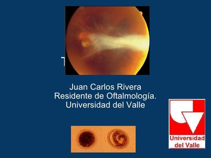 Toxocara Canis Juan Carlos Rivera Residente de Oftalmología. Universidad del Valle