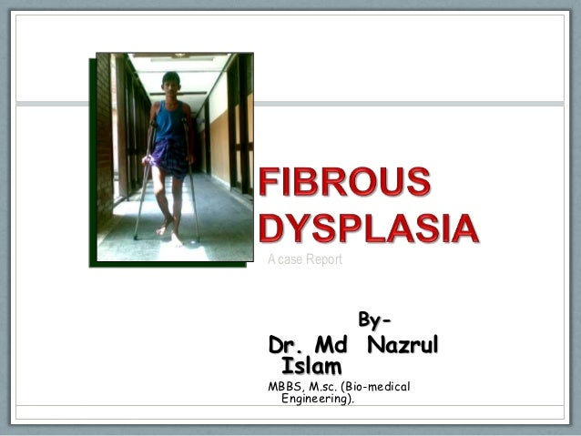 A case Report                By-Dr. Md Nazrul IslamMBBS, M.sc. (Bio-medical  Engineering).