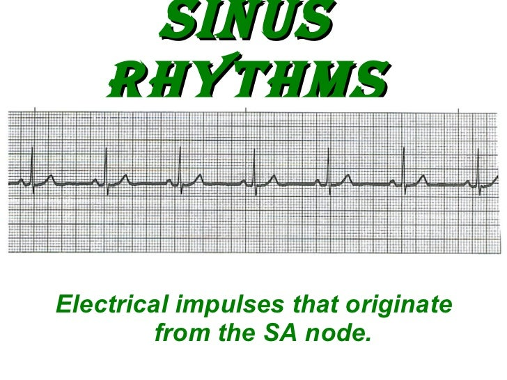 Sinus Rhythms <ul><li>Electrical impulses that originate from the SA node. </li></ul>