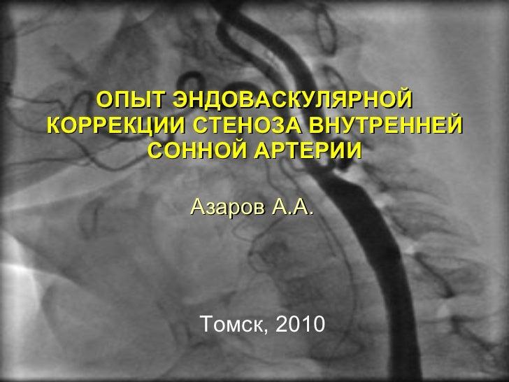 Стеностомия