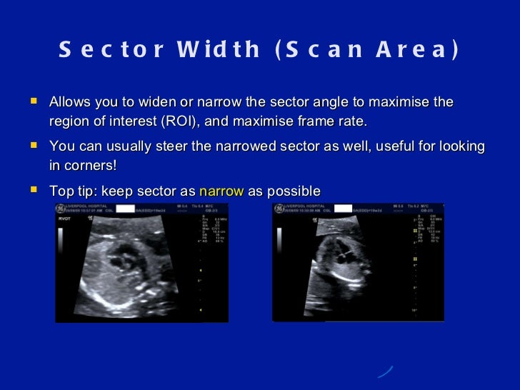 Photo Frame For Scan Ultrasound
