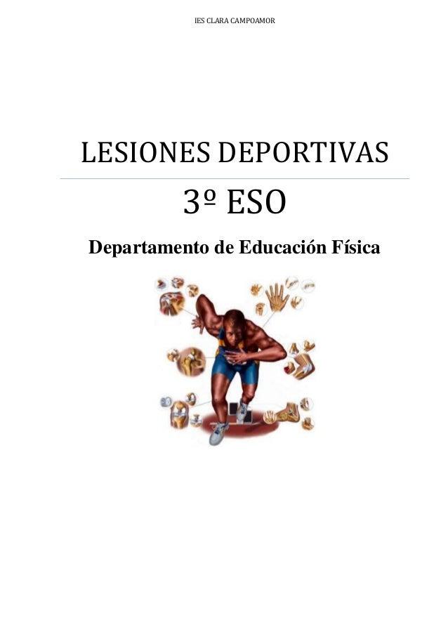 IES CLARA CAMPOAMOR LESIONES DEPORTIVAS 3º ESO Departamento de Educación Física