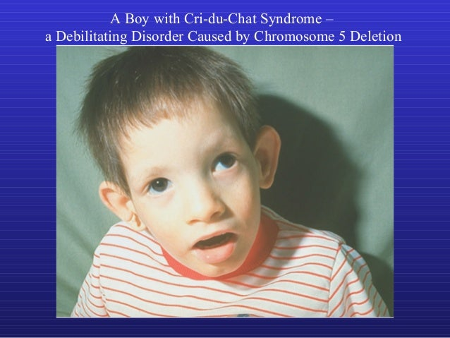 assignment cri du chat syndrome Jamie tarrago mrs slater biology cp 20, april 2014 cri du chat syndrome, also known as 5p minus syndrome is a chromosomal condition this condition occurs.