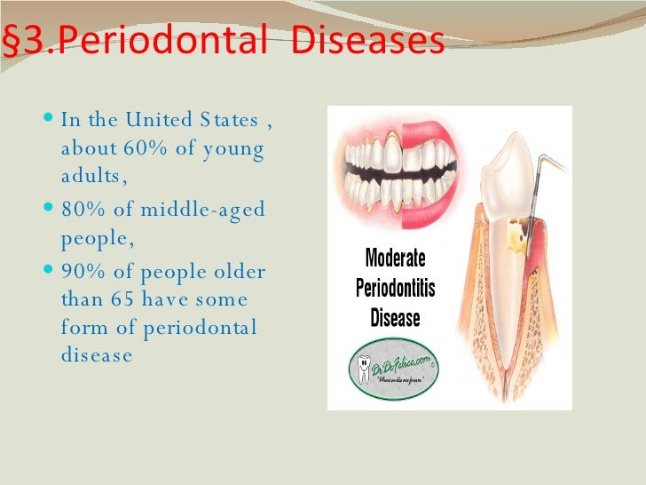 §3.Periodontal  Diseases <ul><li>In the United States , about 60% of young adults,  </li></ul><ul><li>80% of middle-aged p...