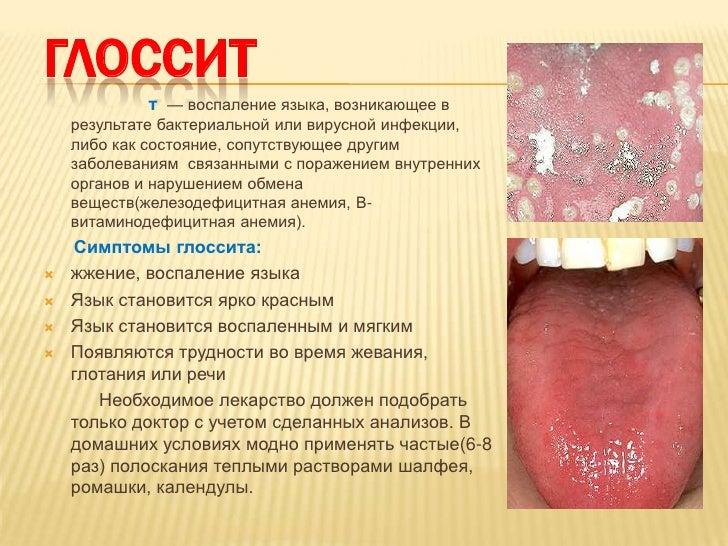 кровоточат десна и запах изо рта лечение