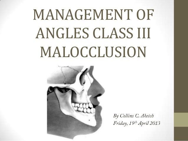 MANAGEMENT OF ANGLES CLASS III MALOCCLUSION