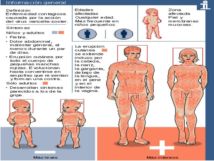 Baño En Ninos Con Fiebre:evaluar, clasificar y tratar al niño con fiebre