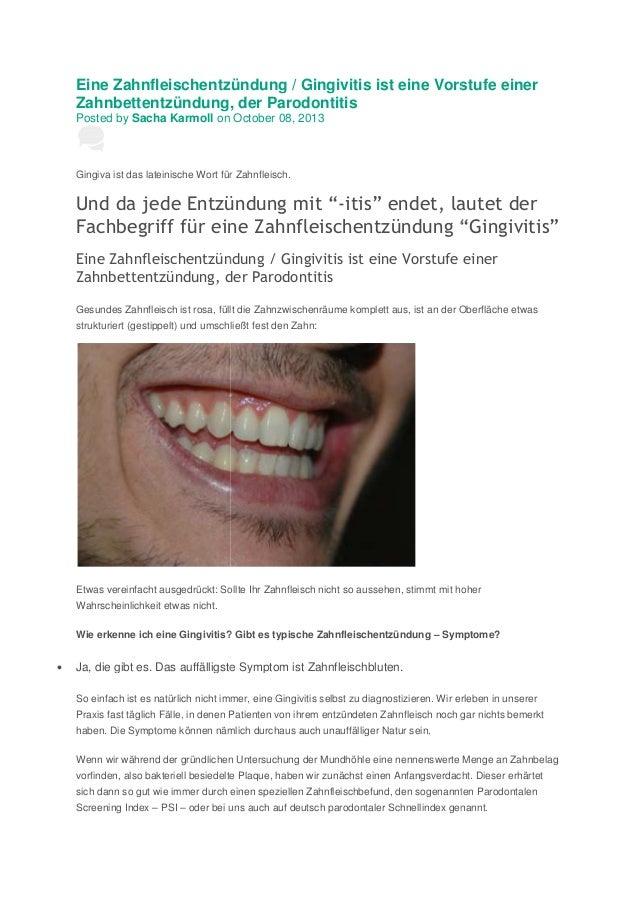 Eine Zahnfleischentzündung / Gingivitis ist eine Vorstufe einer Zahnbettentzündung, der Parodontitis Posted by Sacha Karmo...