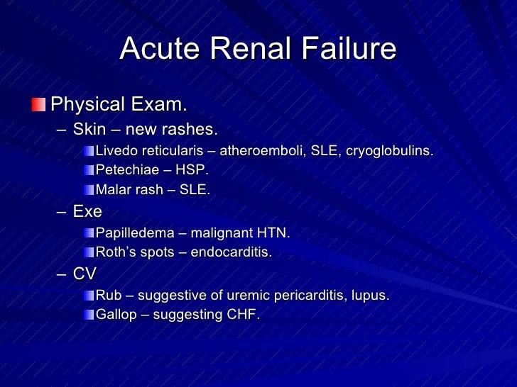 31 derebail acute renal failure