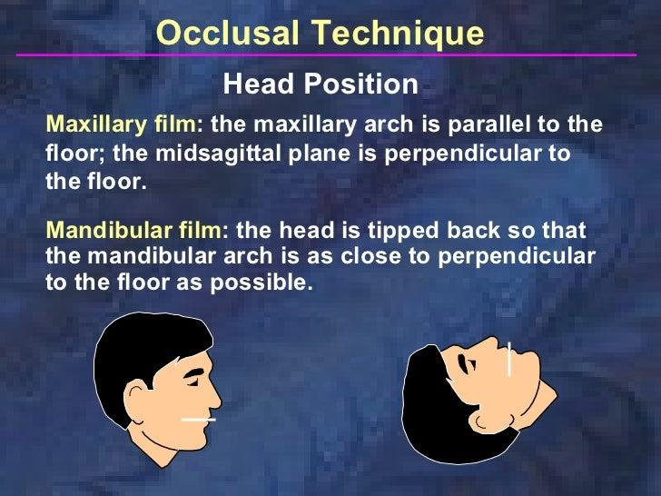 Occlusal Stamp Technique Occlusal Technique Head