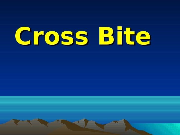 Cross Bite