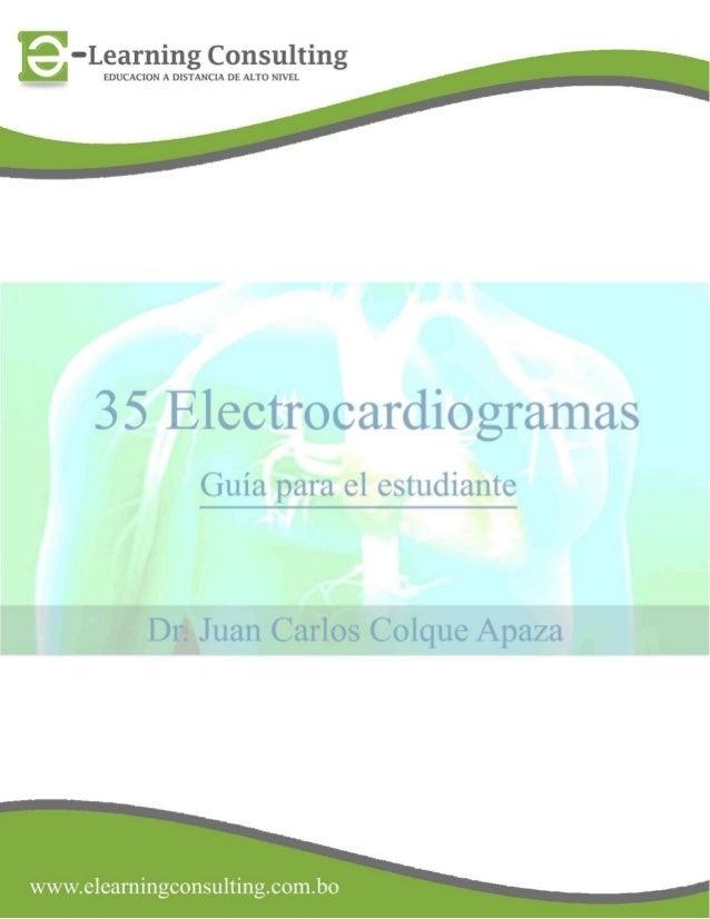 35 electrocardiogramas parte 2