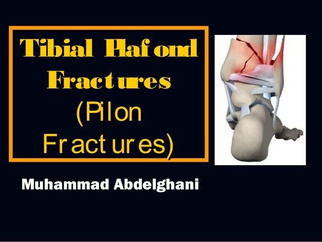 Tibial P ond laf Fractures (Pilon Fr act ur es) Muhammad Abdelghani