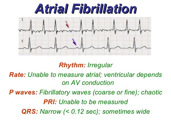 How To Measure Atrial Rate