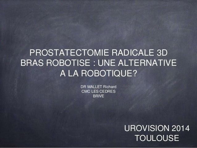 PROSTATECTOMIE RADICALE 3D  BRAS ROBOTISE : UNE ALTERNATIVE  A LA ROBOTIQUE?  DR MALLET Richard  CMC LES CEDRES  BRIVE  UR...