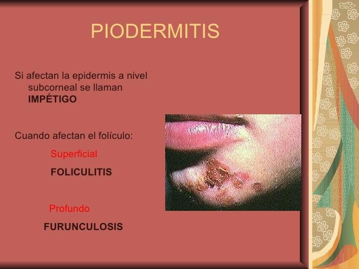 3 Piodermitis