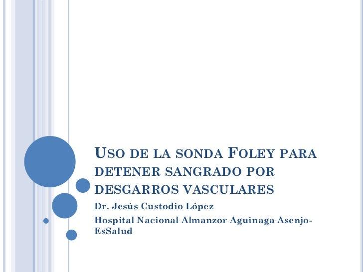USO DE LA SONDA FOLEY PARADETENER SANGRADO PORDESGARROS VASCULARESDr. Jesús Custodio LópezHospital Nacional Almanzor Aguin...