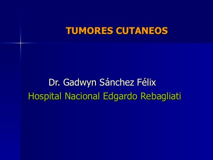 TUMORES CUTANEOS  Dr. Gadwyn Sánchez Félix Hospital Nacional Edgardo Rebagliati