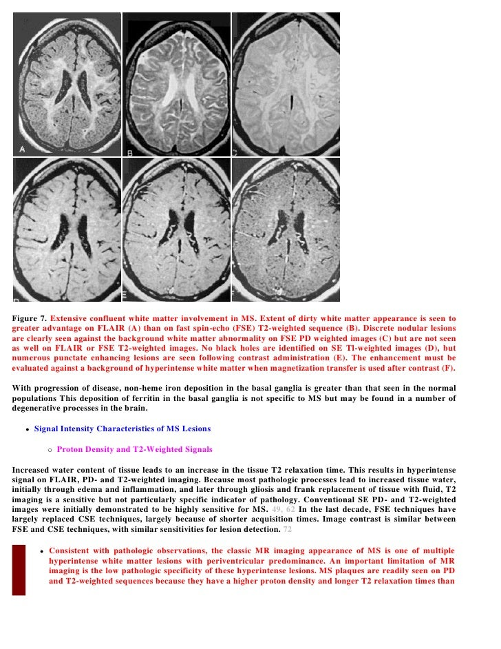Supratentorial White Matter Extent of Dirty White Matter