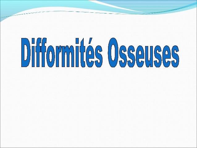 Scoliose Définition:Définition: déviation de la colonne vertébrale dans le plandéviation de la colonne vertébrale dans le ...