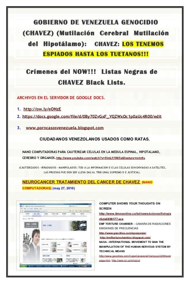 GOBIERNO DE VENEZUELA GENOCIDIO     (CHAVEZ) (Mutilación Cerebral Mutilación        del Hipotálamo):                      ...