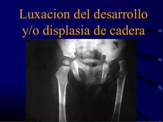 Luxacion del desarrollo  y/o displasia de cadera