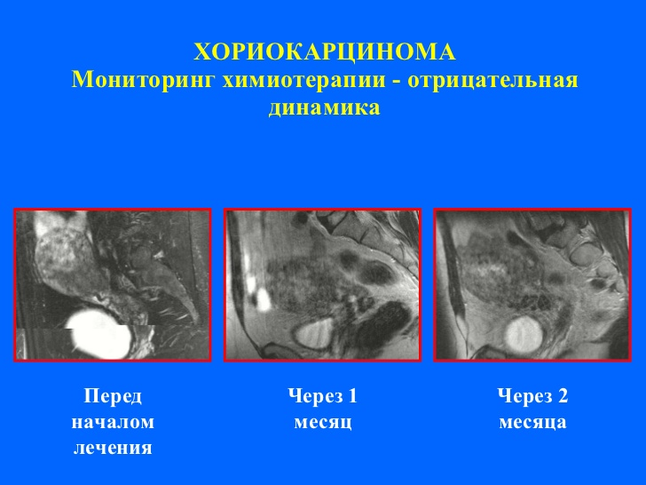 Хориокарцинома фото
