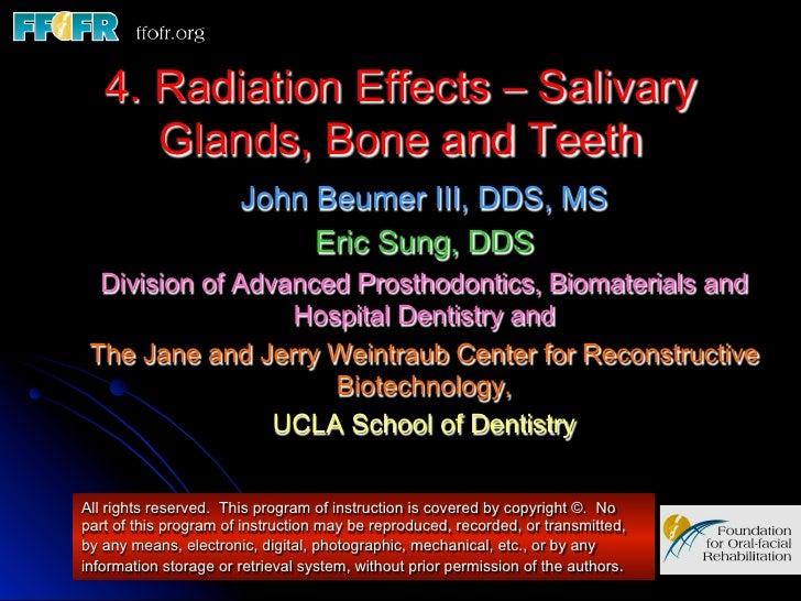 4. Radiation Effects – Salivary      Glands, Bone and Teeth                       John Beumer III, DDS, MS                ...
