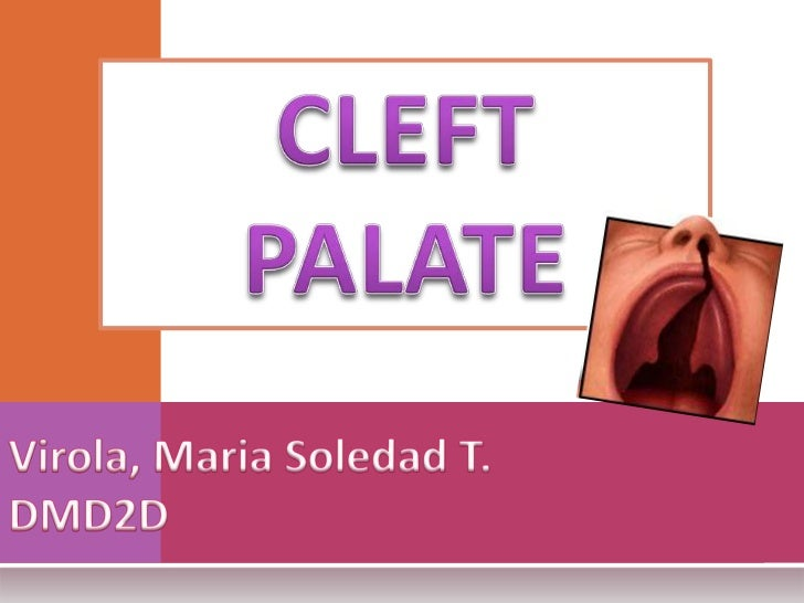 CLEFT PALATE (cheiloschisis) is a condition in which thetwo palates of the skull that form the hard palate are notcomplete...