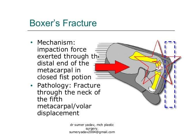 Fourth metatarsal bone  Wikipedia