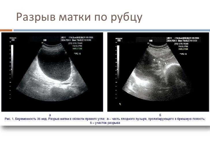 Беременность рубец на матке ниша